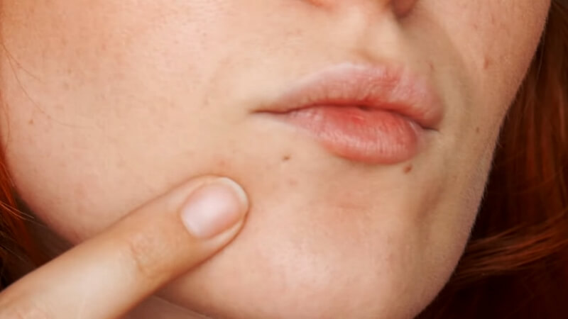 Шрам от прокола губы