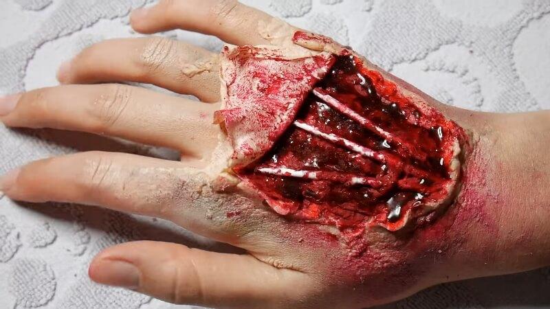 Изодранная кровавая рана на руке готова